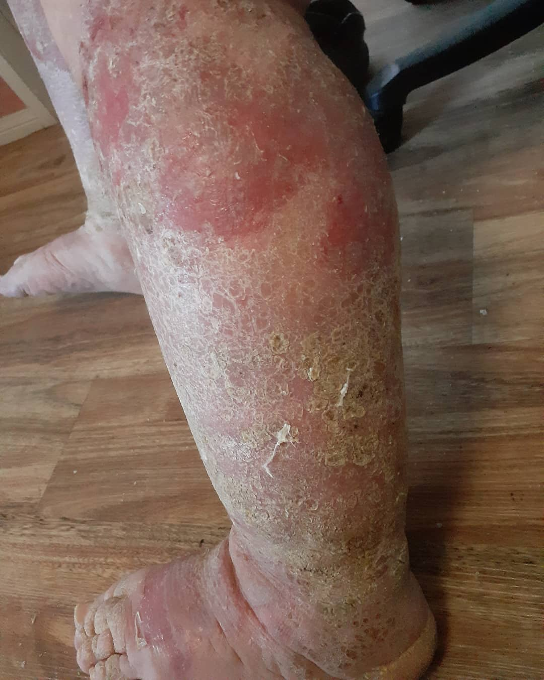 Untreated Lymphoedema