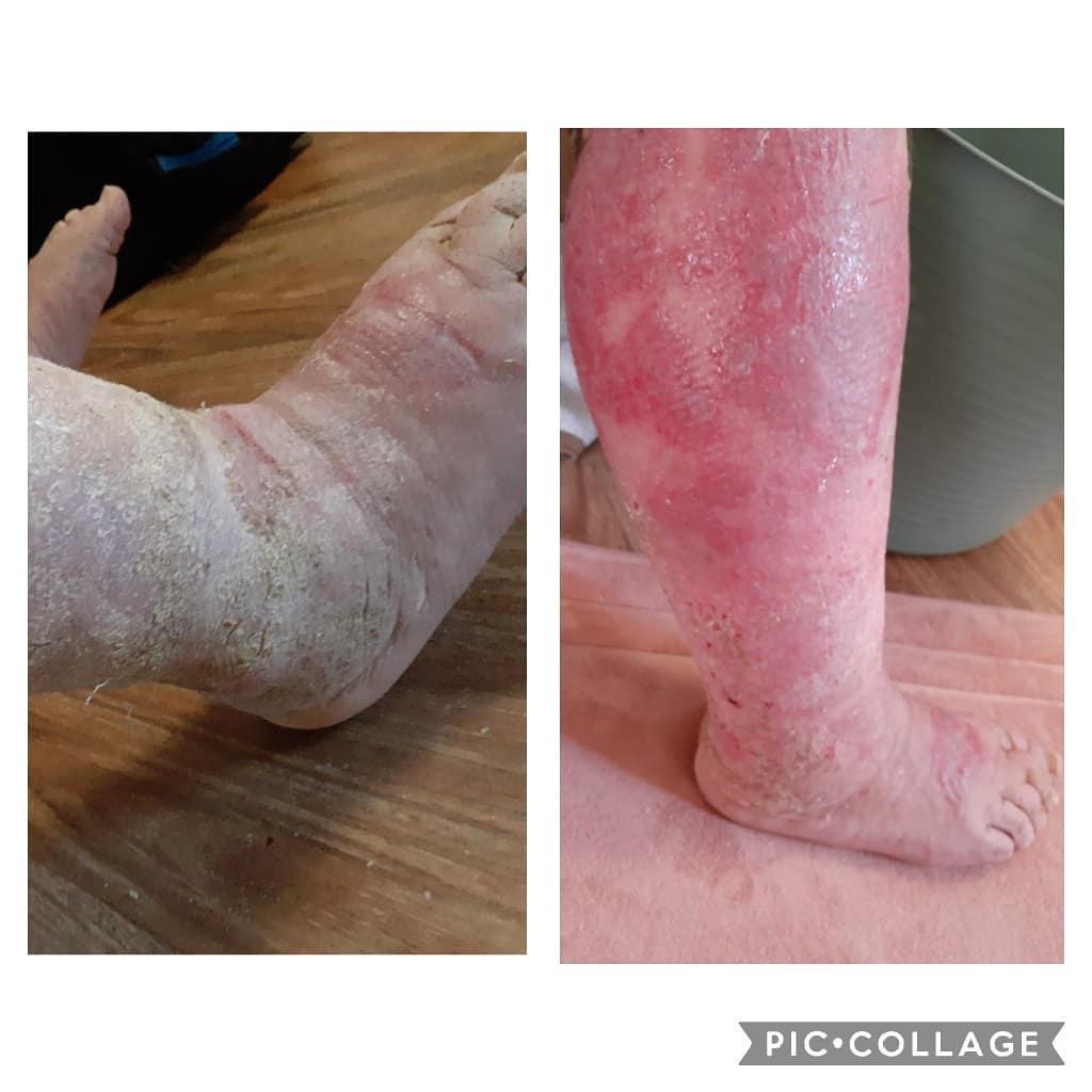 Leaking Legs